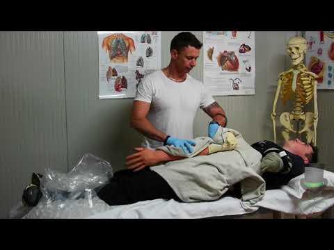 Treatment of a traumatic amputation