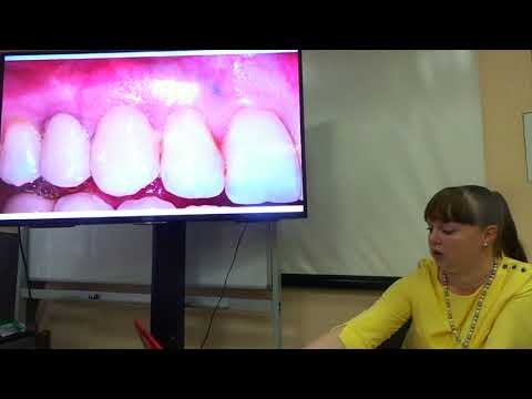 Хирургическое лечение рецессий десны в области зубов и имплантатов. Часть 6
