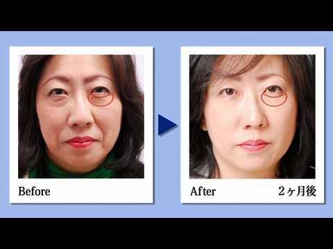 今注目の若返り療法「PRP皮膚再生治療法」とは?