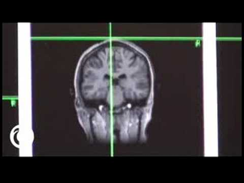 tms - Transcranial Magnetic Stimulation Lets You Deactivate Selected Parts of Your Brain. Transcranial Magnetic Stimulation is a process in which you run an electr...