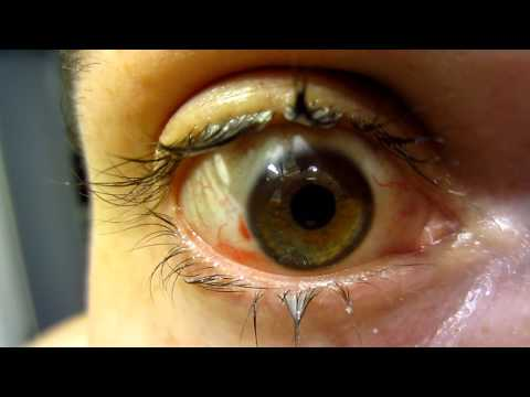 My Eye The Day After Lasik Vision Correction Surgery (Warning! - Gross Eyelashes)