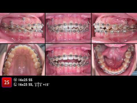 CC407. 2017 ABO CRE Cast   Radiograph Evaluation by Chris, Angle Lee Part 3
