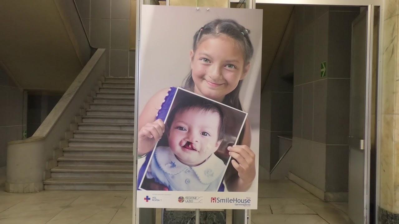 A Roma apre la Smile House all'Ospedale San Filippo Neri