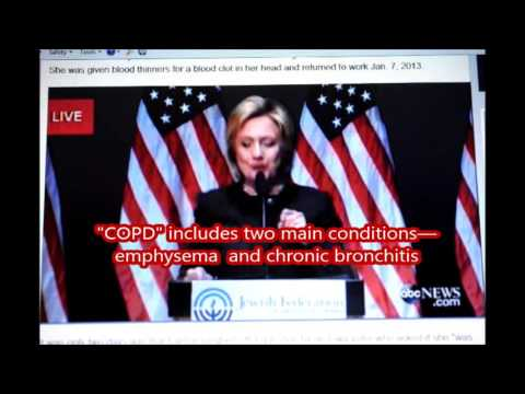 Is Hillary Sick and Really Dying of  emphysema or  chronic bronchitis