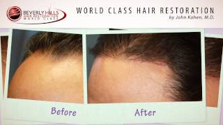 Hair Transplant Surgery in Beverly Hills, CA Results Video