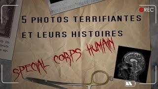 Video 5 Photos TERRIFIANTES et leurs Histoires - SPÉCIAL CORPS HUMAIN MP3, 3GP, MP4, WEBM, AVI, FLV Mei 2017