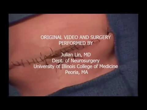 Surgical Simulation of Myelomeningocele Repair (spina bifida cystica)