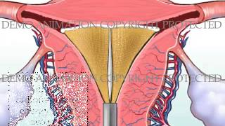Thermal destruction of endometrial lining utilizing the NovaSure device. This animation was used to demonstrate why post-operative bleeding is normal and to be expected for a short time following the ablation procedure.