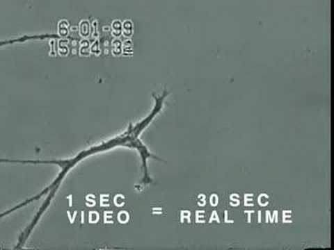 How Mercury Causes Brain Neuron Damage