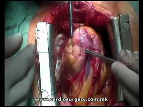 Surgical treatment of left ventricle aneurysm on a beating heart