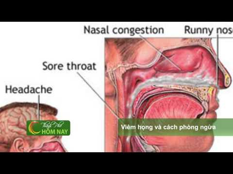 Viêm họng và cách phòng ngừa viêm họng - Thành Phố Hôm Nay [HTV9 – 13.11.2014]