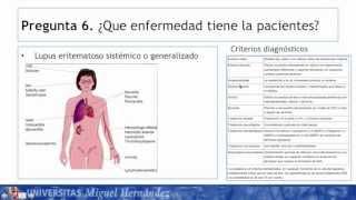 Umh1947 2012-13 Caso004 Enfermedades De Base Inmune Mujer De 35 Años Con Dolor De Las Articulaciones