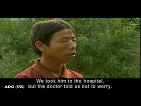 hybrid - A boy has stunned medics with his ability to see in pitch black with eyes that glow in the dark. Doctors have studied Nong Youhui's amazing eyesight since hi...