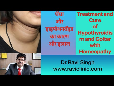 Treatment and Cure of Hypothyroidism and Goiter with Homeopathy