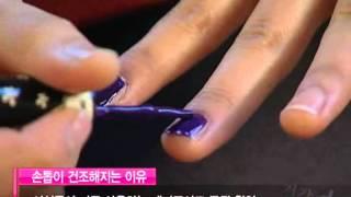 부서지는 손발톱 치료 미리보기