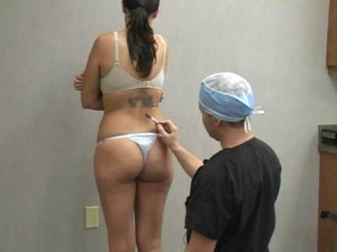 Dr. - Liposuction / Lipo Procedure with Dr. William Halll - Kelli Documentary.