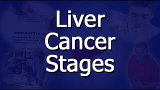 A stage is simply a way of describing how far cancer has progressed, and what form that progress has taken. This video lists and ...