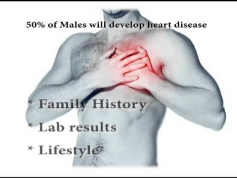Detecting Heart Disease: Cardiac CT v. Stress Testing