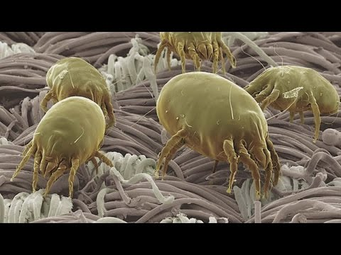 Good Question: What Are Dust Mites?