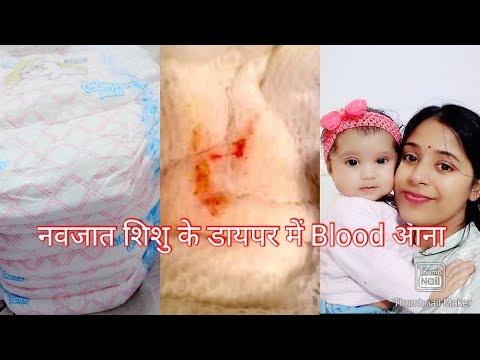 Veginal bleeding in new born baby girl|   नवजात शिशु के डाईपर में खून का दिखना