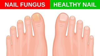 In a suitable environment, dermatophytes or fungi can easily spread under the nail, generating an infection, known as the mycosis or the nail—of nail fungus.This fungus can appear on both the feet and hands and is known as onychomycosis.Although not a serious health problem, nail fungus can weaken and break the nail.It can also cause pain when wearing close-toed shoes and, over time you'll notice that the nails turn yellow and ugly.There are several over-the-counter medications that promise to treat nail fungus, but it can also be treated naturally through the use of turmeric, which has anti-fungal properties.Turmeric has an active compound called curcumin that has medicinal properties. It combats nail fungus and can also strengthen the nails.Coconut oil has anti-bacterial and anti-fungal substances that have helped stop the multiplication of yeasts, which cause nail fungus.Ingredients3 tbsp organic coconut oil3 tbsp turmeric powderMethod of preparationPut the coconut oil in the pan to melt it. Add the turmeric powder and stir over low heat until creamy.Separate to cool and store.How to useApply the cream on the affected area by toenail fungus and leave it alone for a period of 30 to 40 minutes. Rinse.Apply every day until you notice a noticeable change in nails.Resource(s):https://www.turmericforhealth.com/turmeric-benefits/turmeric-for-fungal-infectionshttps://academic.oup.com/jac/article/63/2/337/711570/Curcumin-as-a-promising-antifungal-of-clinicalDisclaimer: The materials and the information contained on Natural Cures channel are provided for general and educational purposes only and do not constitute any legal, medical or other professional advice on any subject matter. These statements have not been evaluated by the FDA and are not intended to diagnose, treat or cure any disease. Always seek the advice of your physician or other qualified health provider prior to starting any new diet or treatment and with any questions you may have regarding a medical condit