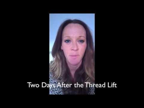 Justine's Purity Bridge threadlift diary