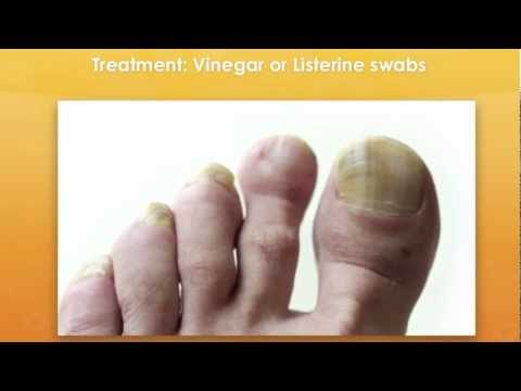 Yellow Thick Toenails Cured For Good!