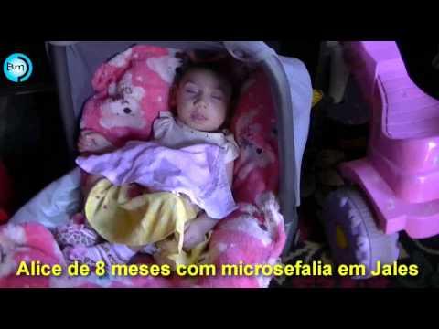 Jales - Família com criança de 8 meses e com Microcefalia passa por dificuldades em Jales, quase não tem o que comer.