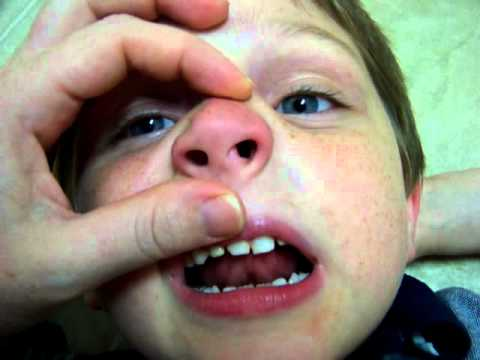 Kid Gets Lego Stuck In His Nose
