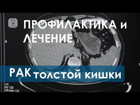 Рак толстой кишки. Перспективы лечения рака толстой кишки. Клиника колопроктологии.