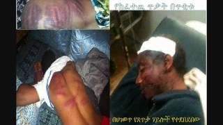 AKMEL NEGASH, ISSAC ESHETU AND DESSE POLICE BRUTALITY ON VOA