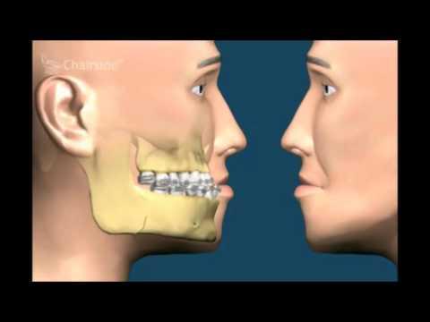 Лечение дефектов челюстей  Хирургическая стоматология Советы стоматолога