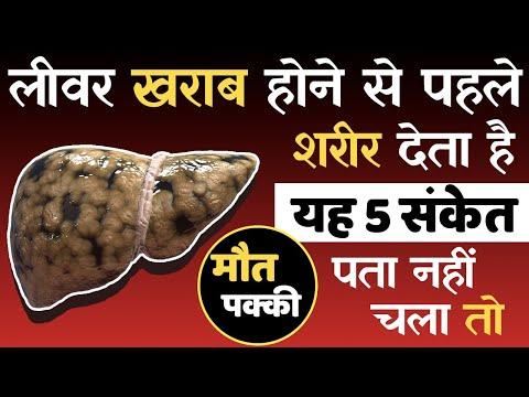 लीवर खराब होने से पहले देते हैं यह 5 संकेत, पता नहीं तो घातक   Liver Kharab hone ke lakshan