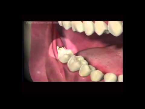 Как удалить зуб без боли в домашних условиях видео