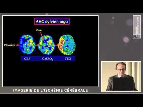 9-imagerie.de.l.ischemie.cerebrale.j.c.baron.