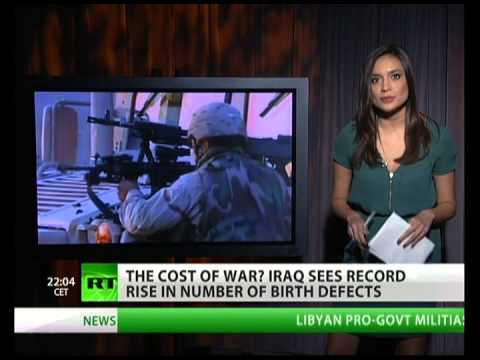 Birth defects skyrocket in Iraq after US invasion