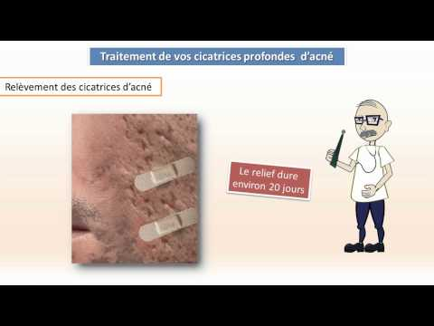 comment soigner cicatrices acné