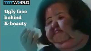 The ugly side of Korean beauty
