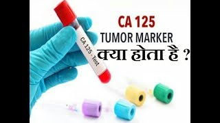 Cancer Test in Hindi