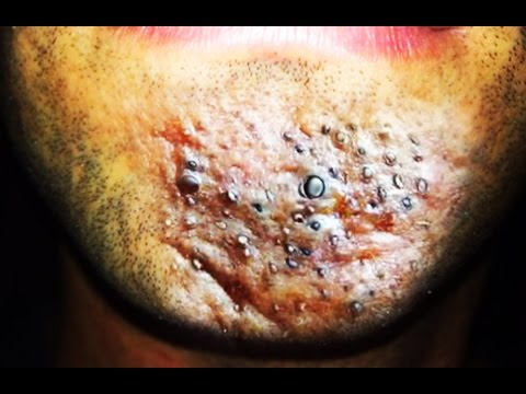 Video Worlds Worst Chin Zits  (Part 2) Cysts, Comedones, Blackheads, Acne, Whiteheads download in MP3, 3GP, MP4, WEBM, AVI, FLV January 2017