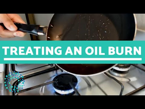 Treating An OIL BURN - What To Do!