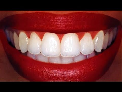 """Homemade"" Teeth Whitening"