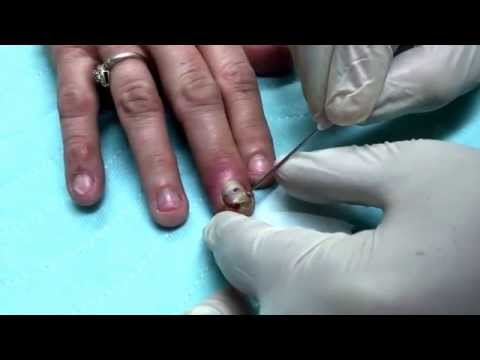 how to drain finger infection