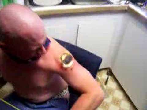 video que muestra como le borran unos tatuajes a una persona usando un cuchillo ardiendo