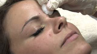 Blacketts Skin and Laser Clinic Botox treatment
