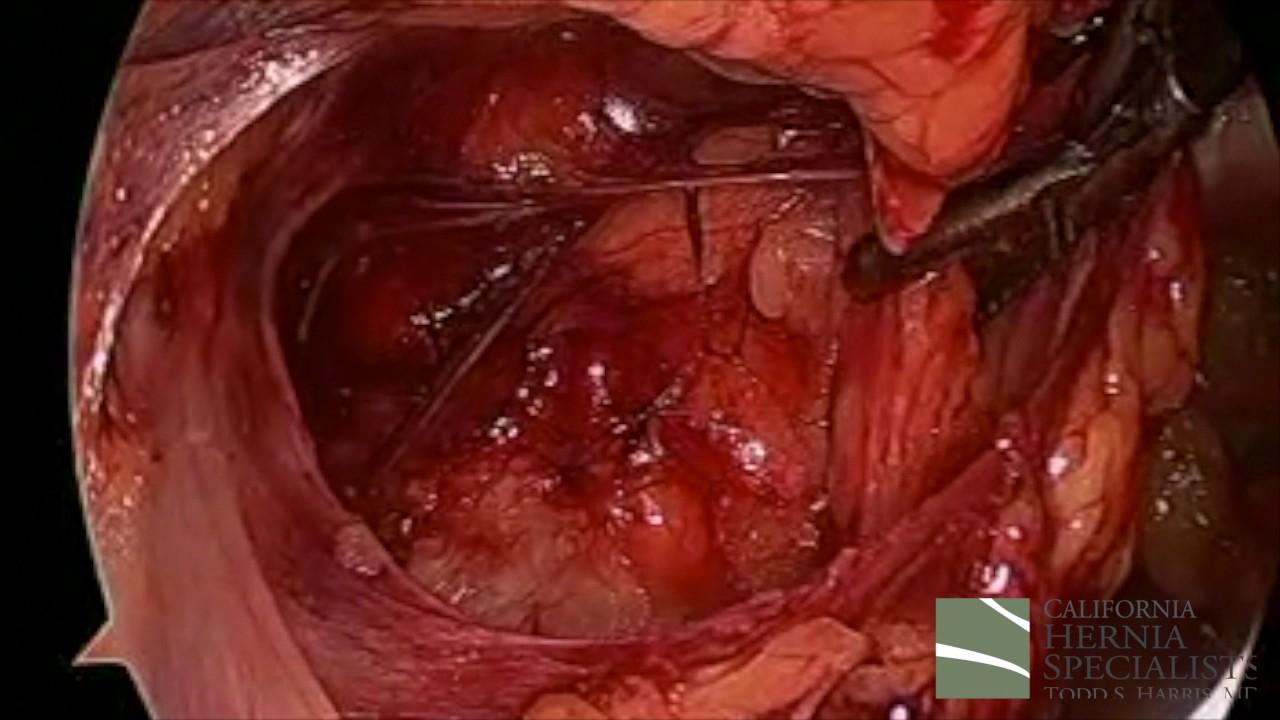 Compare Laparoscopic & Robotic Hernia Surgery - California Hernia ...