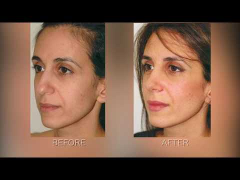 How to Achieve a Natural Rhinoplasty