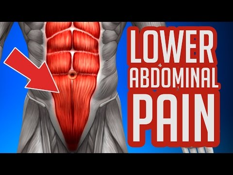 Lower Abdominal Pain - Common Causes & Symptoms