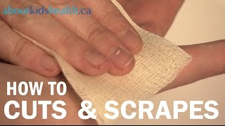 How to treat cuts and scrapes