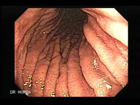 Endoscopy - This Video Clip showsa high resolution endoscopy displaying the stomach as well as the duodenum, the video clip also displays some sample of tissues obtains ...